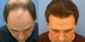 تقنيات زراعة الشعر